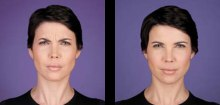 2-botox-before-after-kopelson-clinic-beverly-hills-220x105