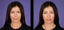 3-botox-before-after-kopelson-clinic-beverly-hills-220x105