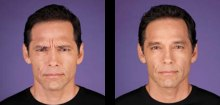 4-botox-before-after-kopelson-clinic-beverly-hills-220x105