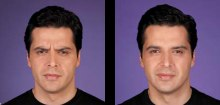 5-botox-before-after-kopelson-clinic-beverly-hills-220x105
