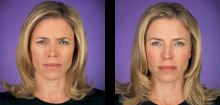 8-botox-before-after-kopelson-clinic-beverly-hills-220x105