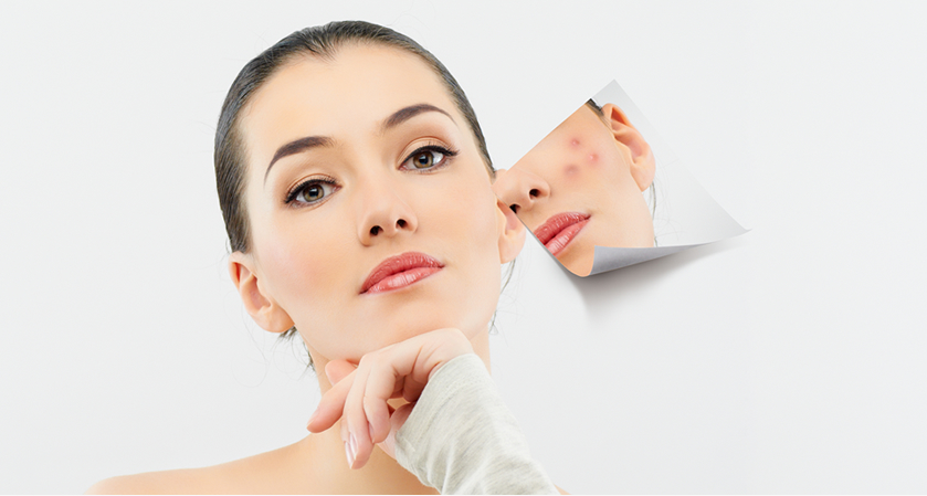 Laser Acne Scar Treatment in Beverly Hills, West Hollywood & Los Angeles