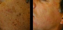 laser-resurfacing-beverly-hills-los-angeles-before-after-1-220x105