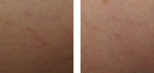 sclerorotherapy-before-after-1-220x105