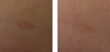sclerorotherapy-before-after-2-220x105