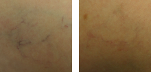 sclerorotherapy-before-after-3-220x105