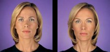 Dysport Injections in Beverly Hills, West Hollywood & Los ...